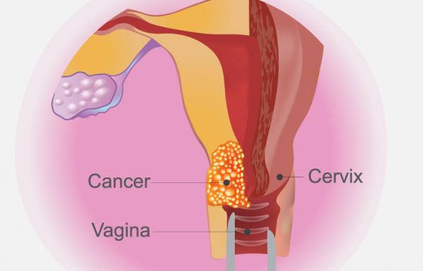 הנחיות מטעם ASCO בנושא בדיקות סקר לסרטן צוואר הרחם (J Glob Oncol)